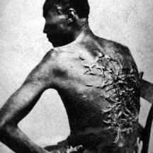 1863,  Louisiane cicatrices de flagellation sur un esclave